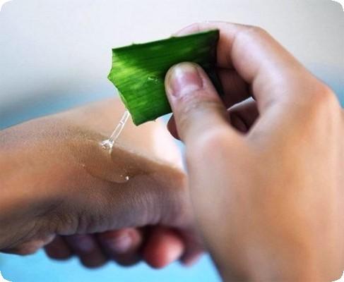 нанесение сока алоэ на кожу