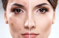 Избавляемся от возрастных пигментных пятен на лице