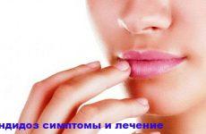 Кандидоз: причины заболевания, виды, симптомы и лечение