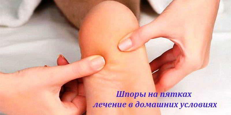 Шпоры на пятках: быстрое и эффективное лечение в домашних условиях