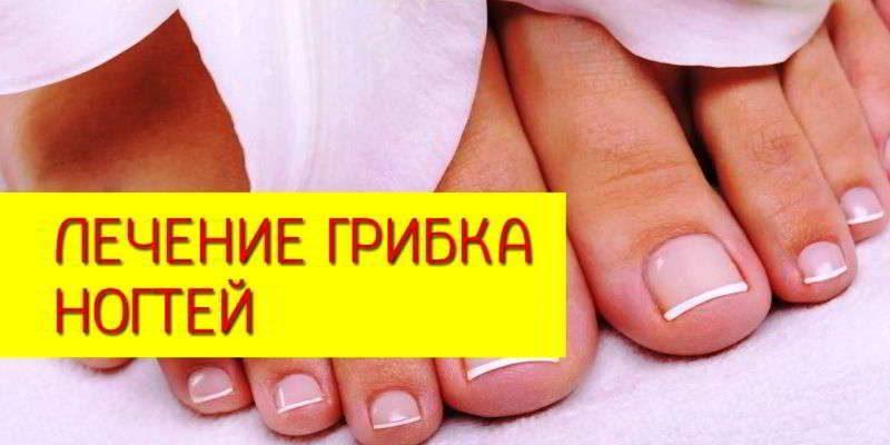 Как и чем лечить грибок на ногтях ног в домашних условиях