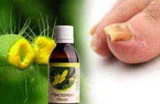 Масло чистотела от грибка ногтей применение в домашних условиях, рецепты, отзывы